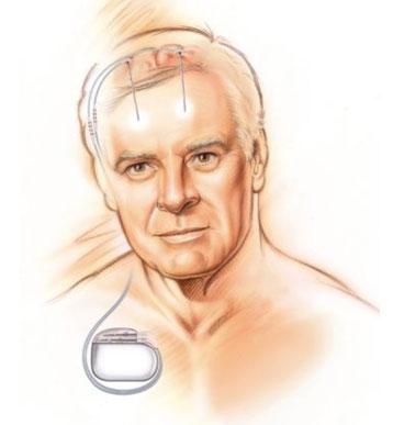 Figure 3. Schéma du dispositif de stimulation cérébrale profonde.