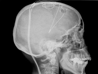Figure 4. Radiographie de contrôle post-opératoire des électrodes chroniques implantées de manière bilatérale dans le noyau subthalamique.