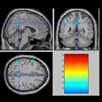 Motivation et noyaux gris centraux