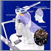 La stimulation magnétique transcranienne