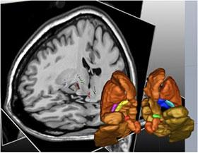 Optimisation et compréhension de la stimulation cérébrale profonde