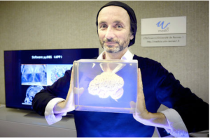 Neurochirurgie 3D Pierre Jannin